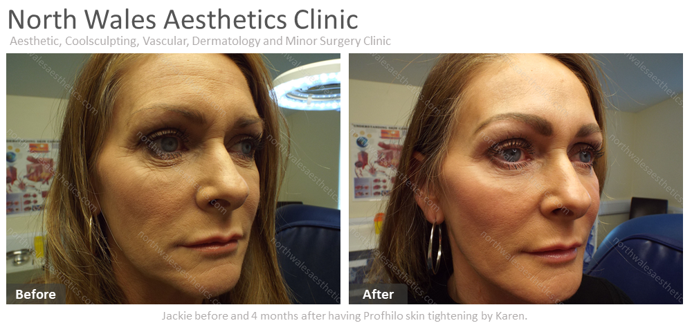 Profhilo Skin Tightening :: North Wales Aesthetics