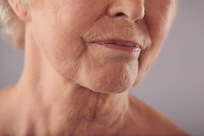 The anti ageing drip