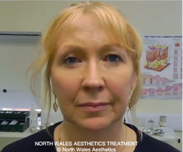 Our Patients Before and After Video Gallery