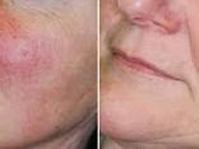 Permanent removal of facial veins