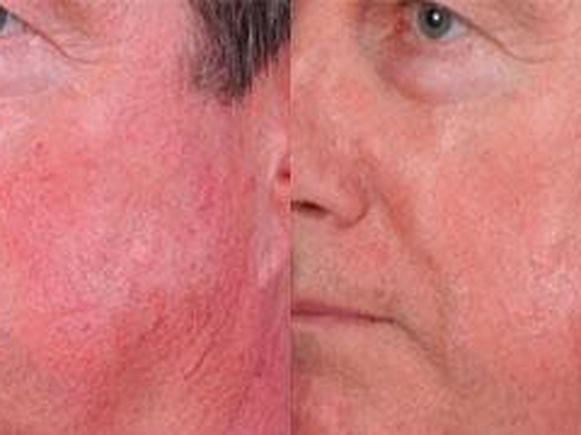 Rosacea And Facial Flushing