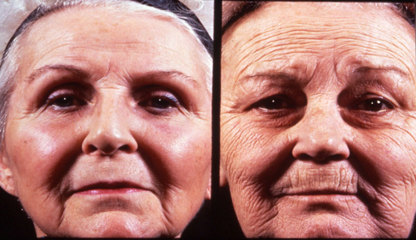 The sun causes rapid ageing and crêpey wrinkly skin
