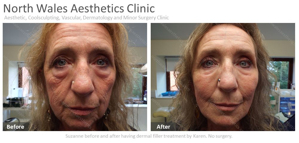 Is there a need to have a facelift?