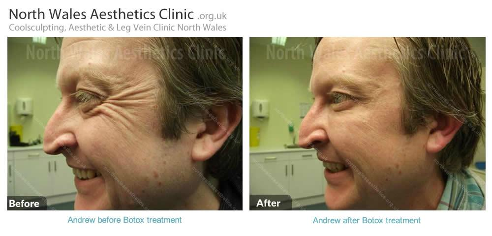 Mens Aesthetics Image 10