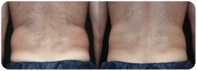 Mens Aesthetics Image 6