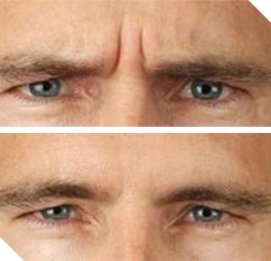 Mens Aesthetics Image 24