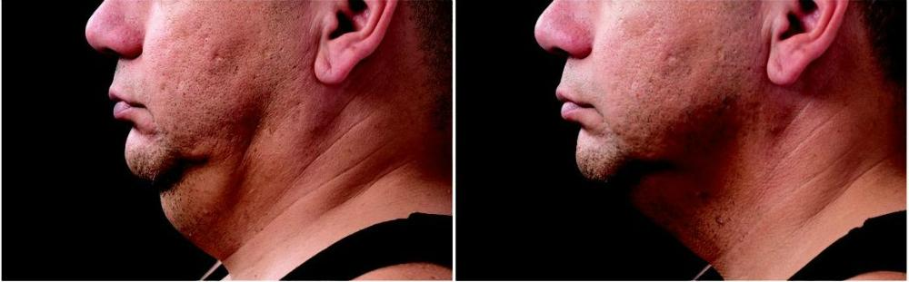 Mens Aesthetics Image 2
