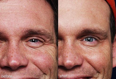 Mens Aesthetics Image 20