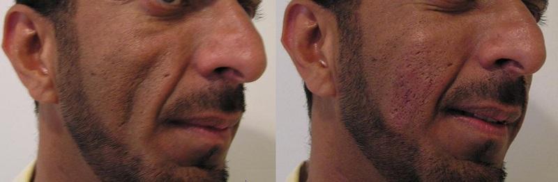 Mens Aesthetics Image 7