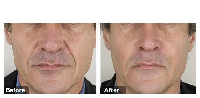 Mens Aesthetics Image 12