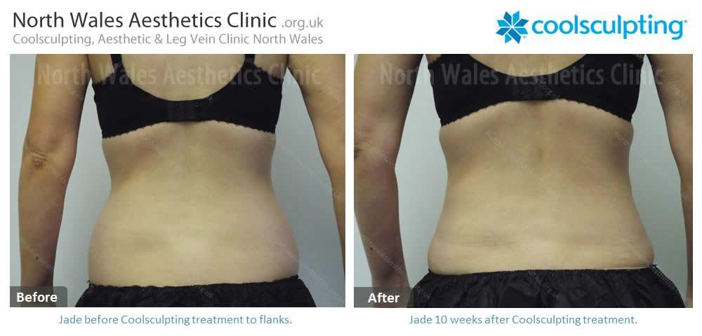 Coolsculpting Image 42