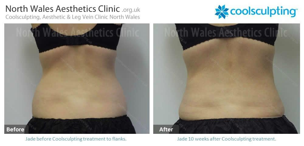 Coolsculpting Image 41