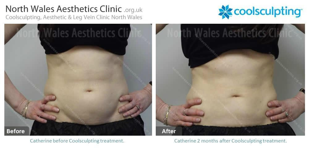 Coolsculpting Image 30