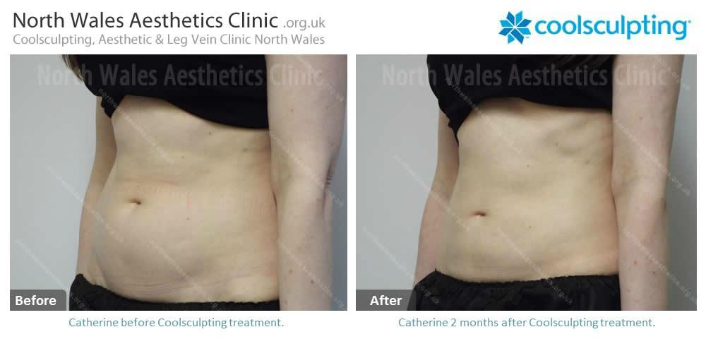 Coolsculpting Image 32