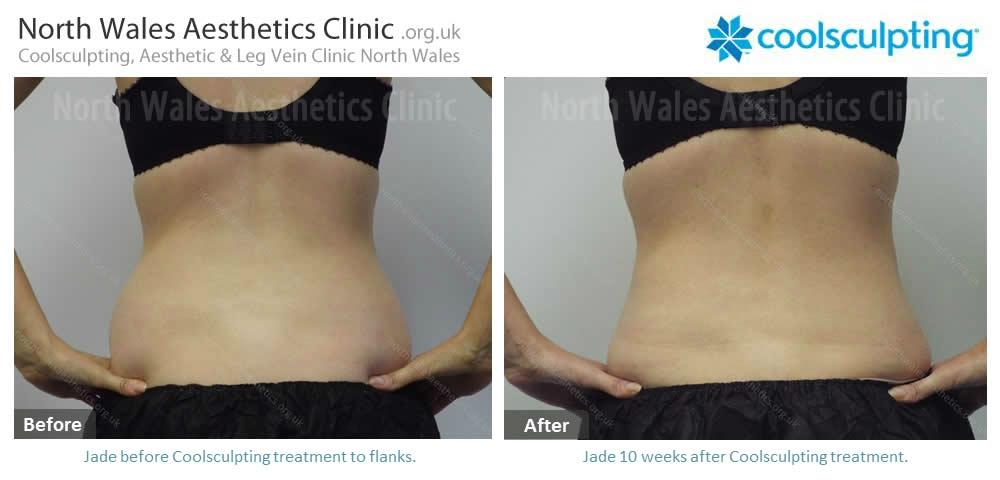 Coolsculpting Image 43
