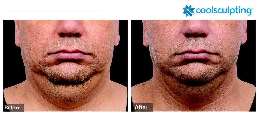 Coolsculpting Image 53