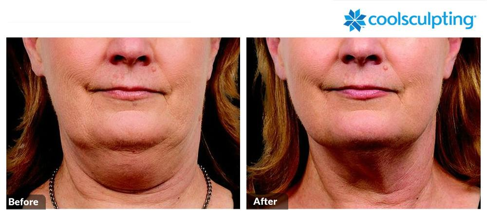 Coolsculpting Image 1