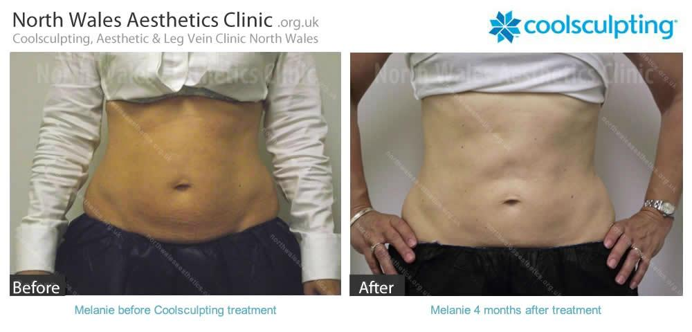 Coolsculpting Image 20