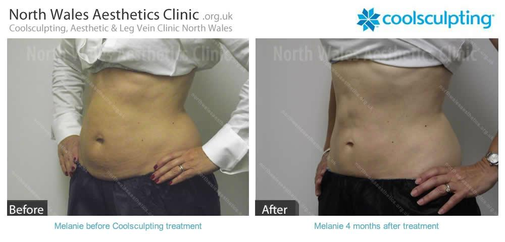 Coolsculpting Image 19
