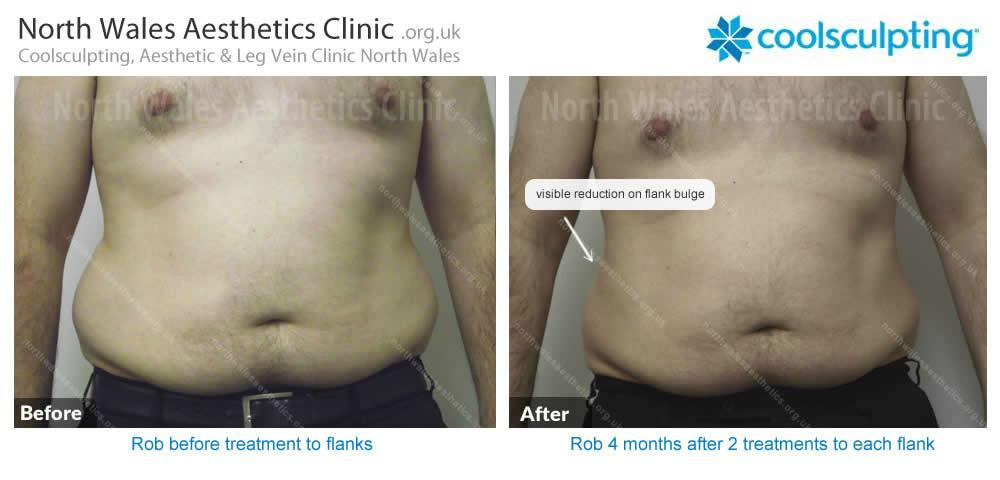 Coolsculpting Image 55