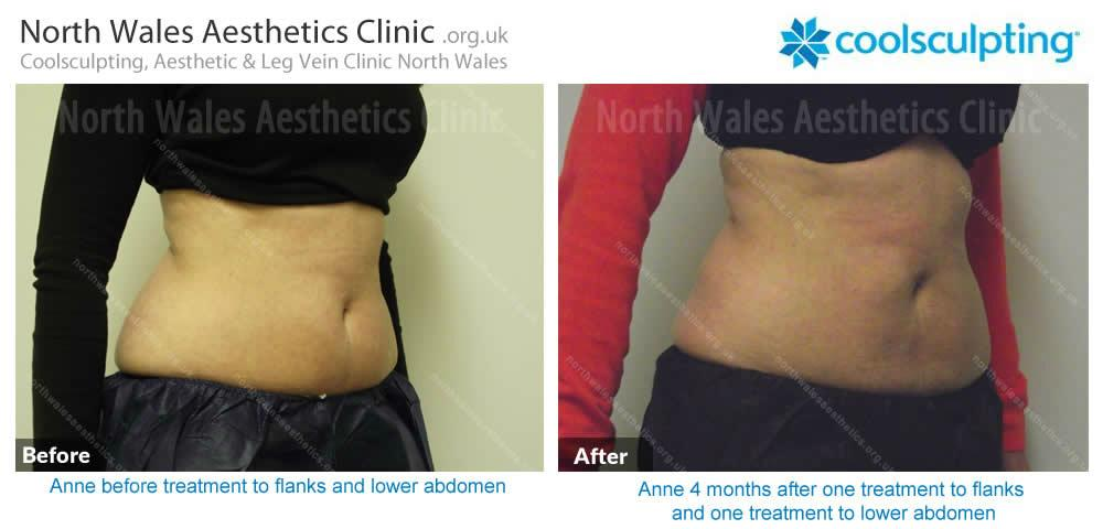 Coolsculpting Image 49