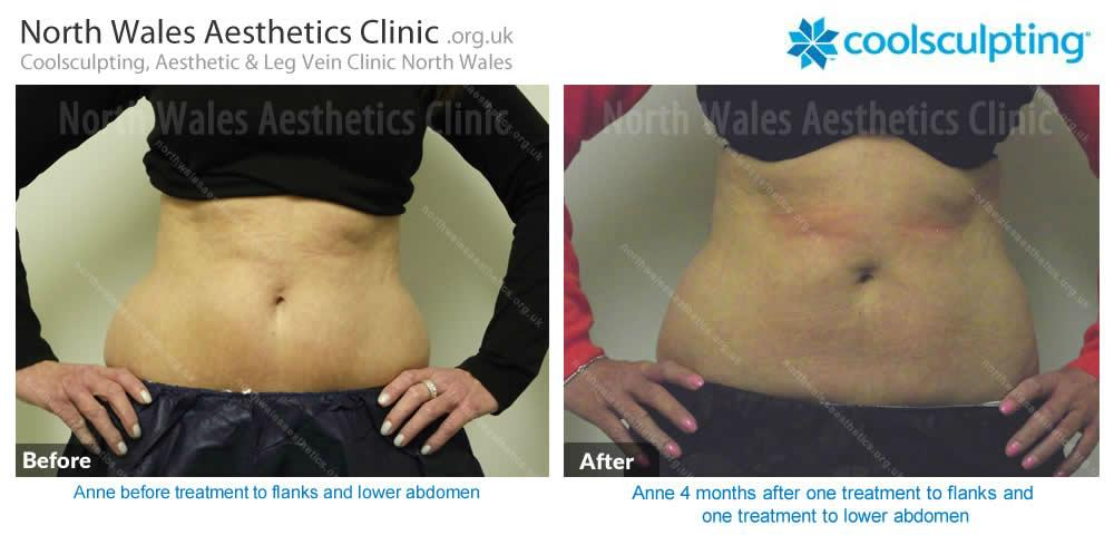 Coolsculpting Image 48