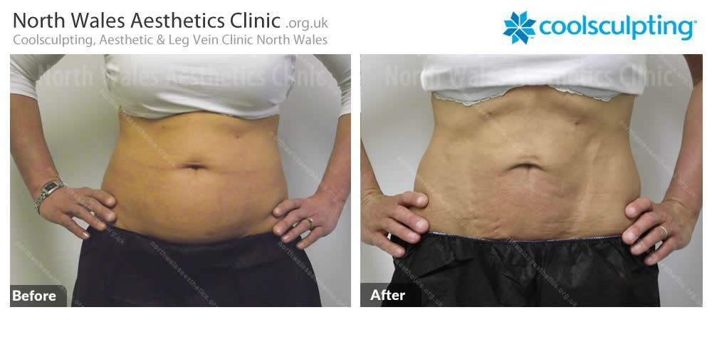 Coolsculpting Image 10