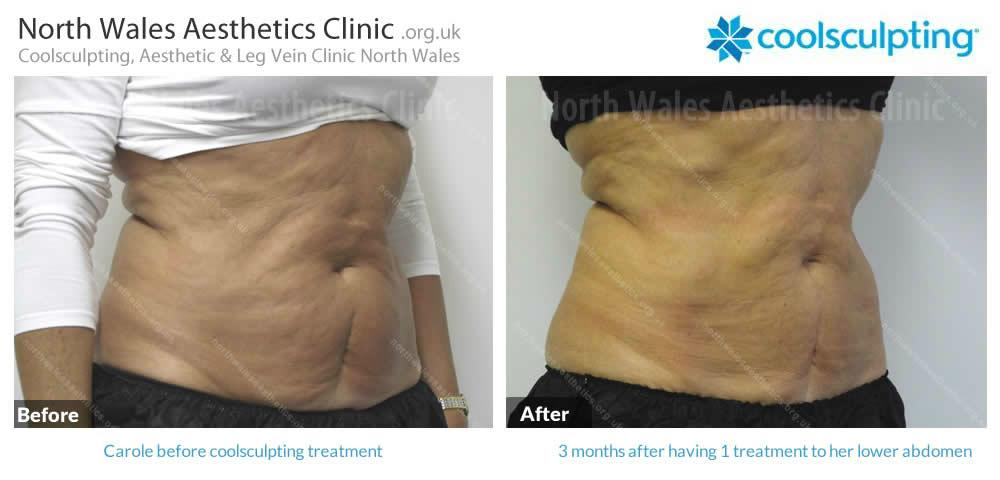 Coolsculpting Image 27