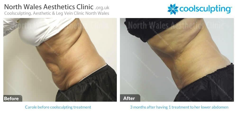 Coolsculpting Image 29