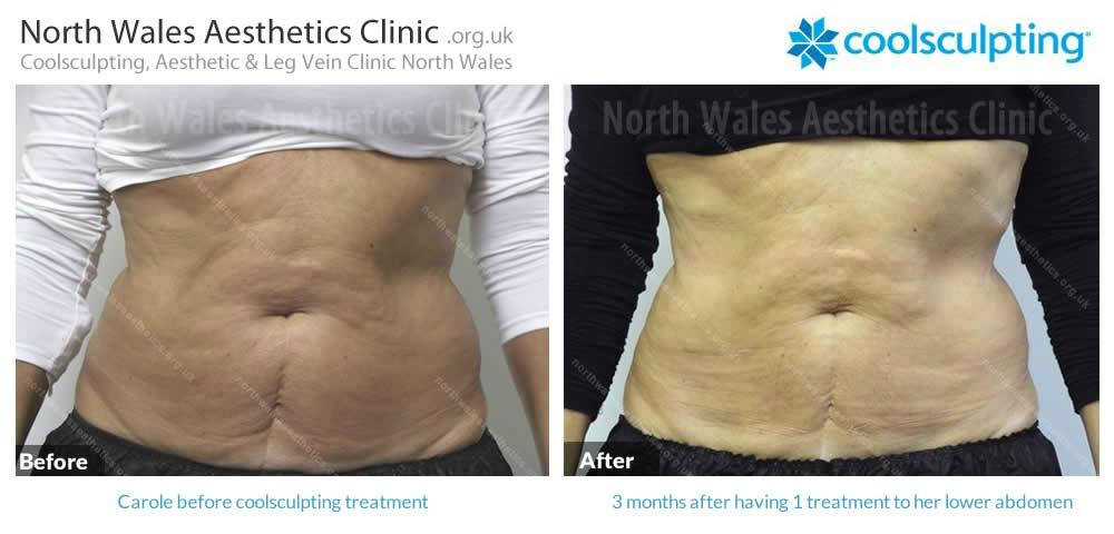 Coolsculpting Image 26