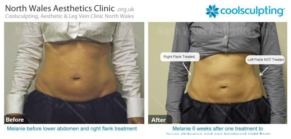 Coolsculpting Image 21