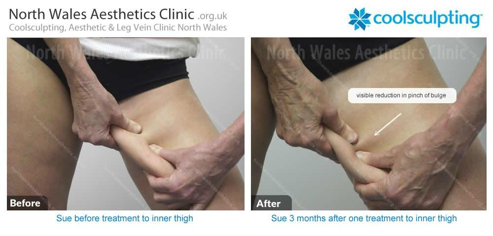 Coolsculpting Image 50