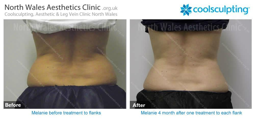 Coolsculpting Image 17