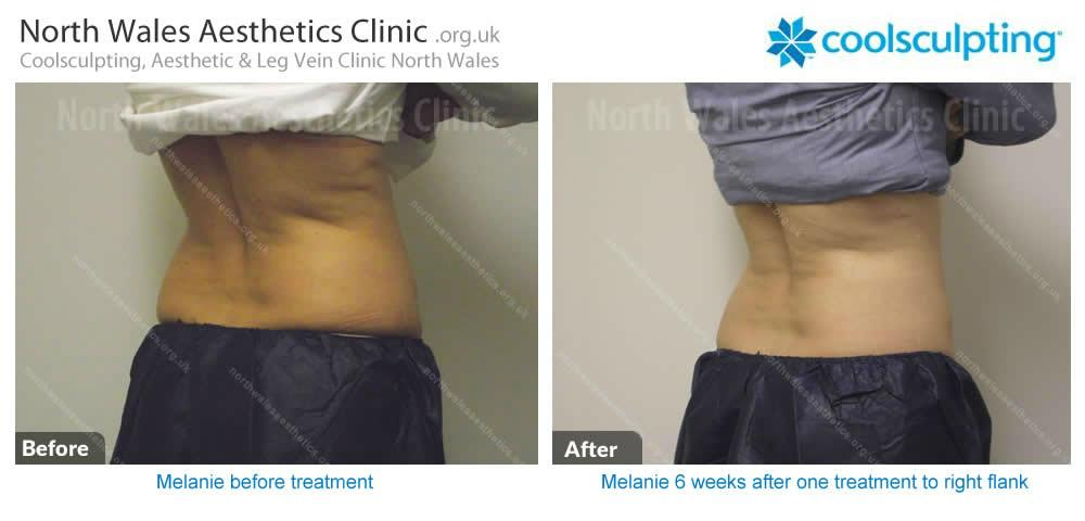 Coolsculpting Image 16