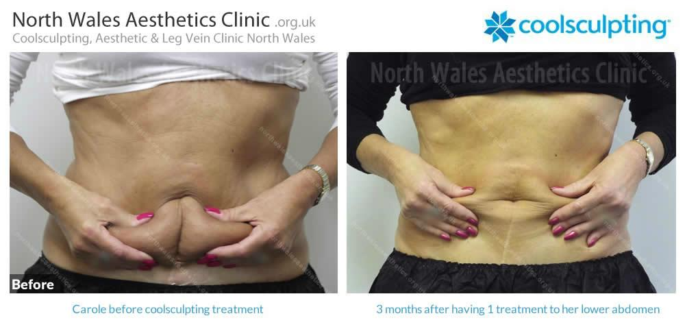 Coolsculpting Image 28