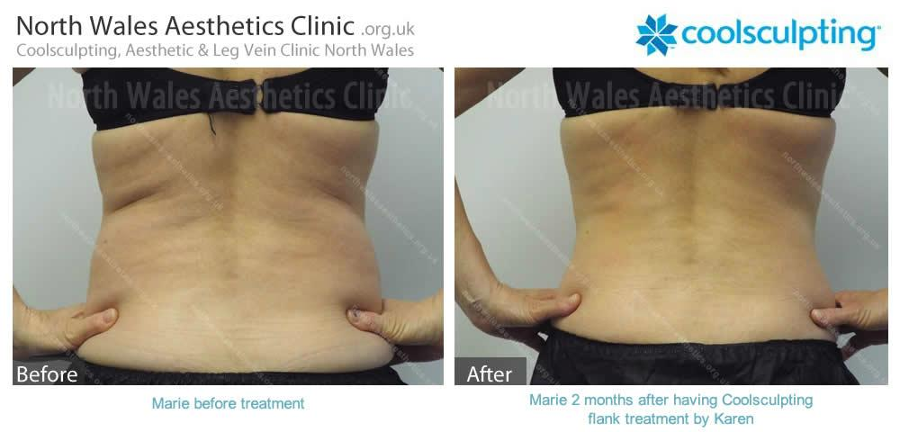 Coolsculpting Image 5