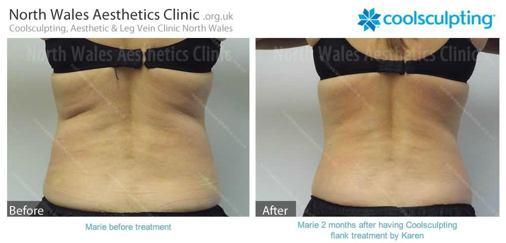Coolsculpting Image 4