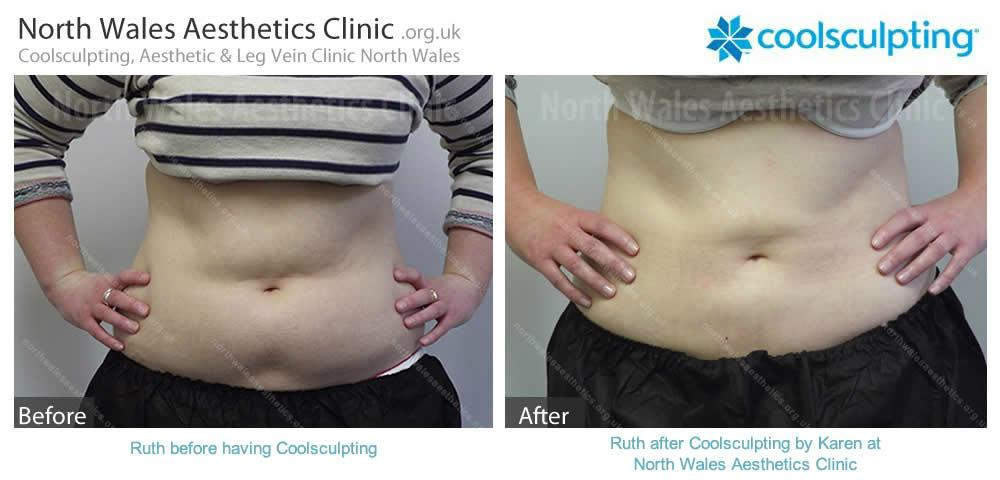 Coolsculpting Image 6