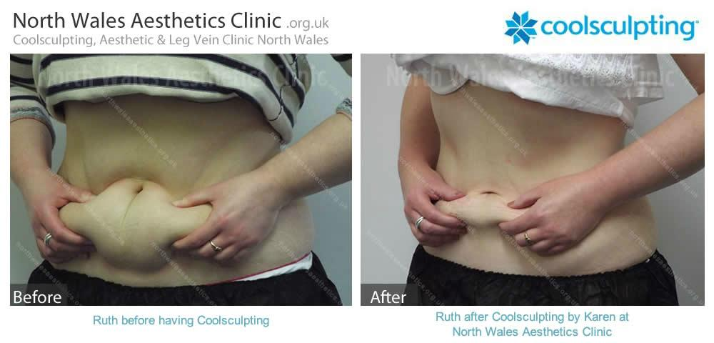 Coolsculpting Image 7
