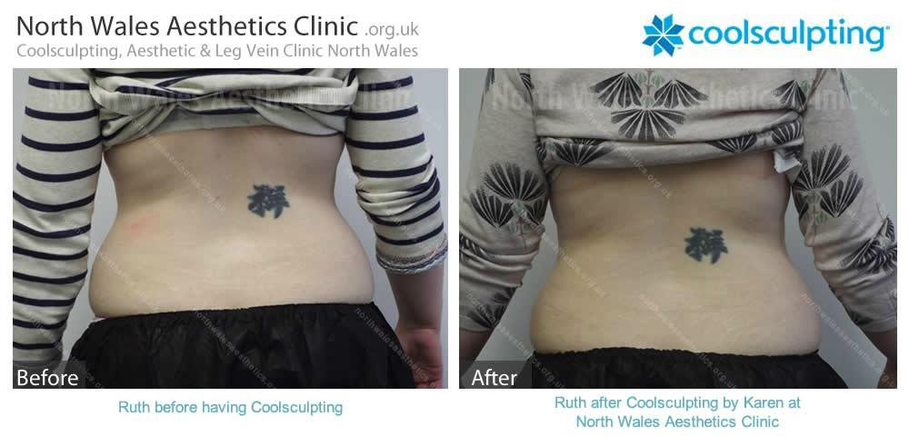 Coolsculpting Image 8