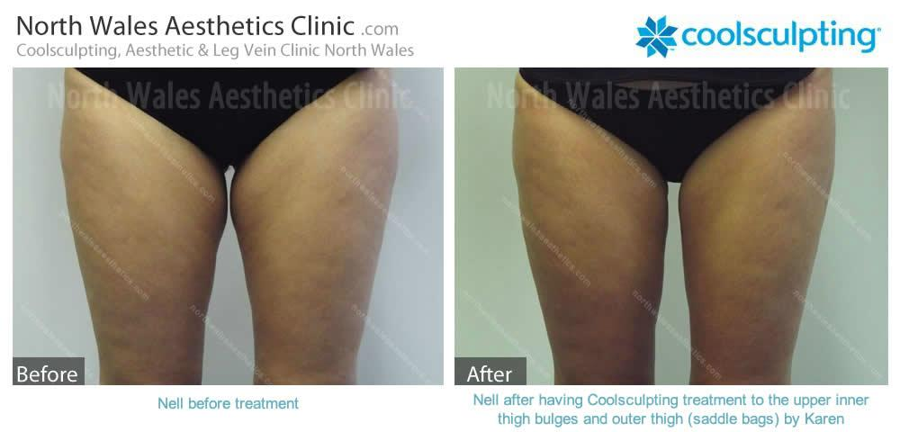 Coolsculpting Image 22