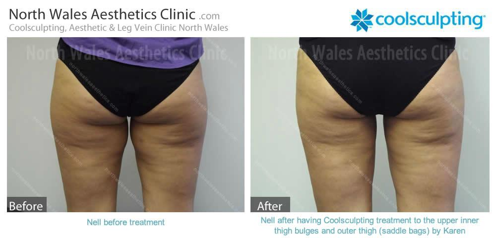 Coolsculpting Image 23