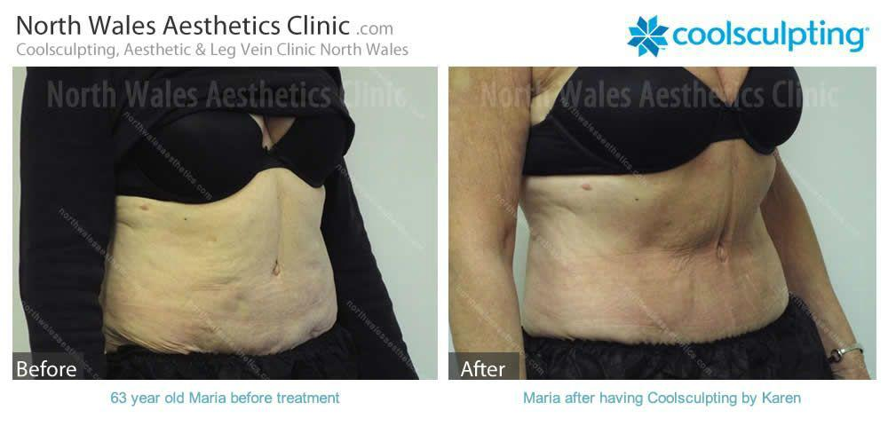 Coolsculpting Image 13