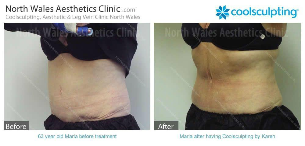 Coolsculpting Image 12