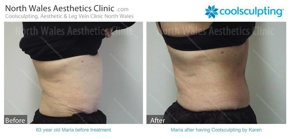 Coolsculpting Image 14