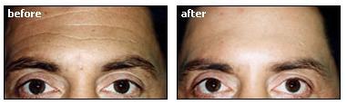 Horizontal Forehead Lines Image 1