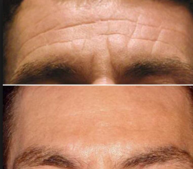 Horizontal Forehead Lines Image 2