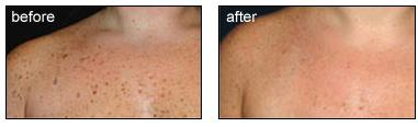 skin Tags Image 1
