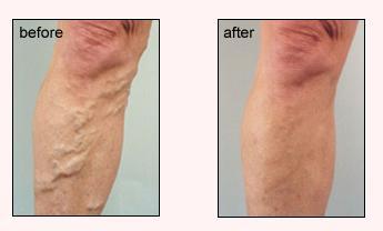 Varicose Leg Veins Image 1
